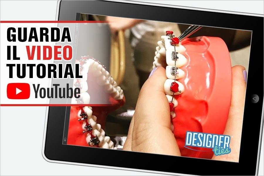 Visiona il video per l'applicazione delle legature Designer-Ties